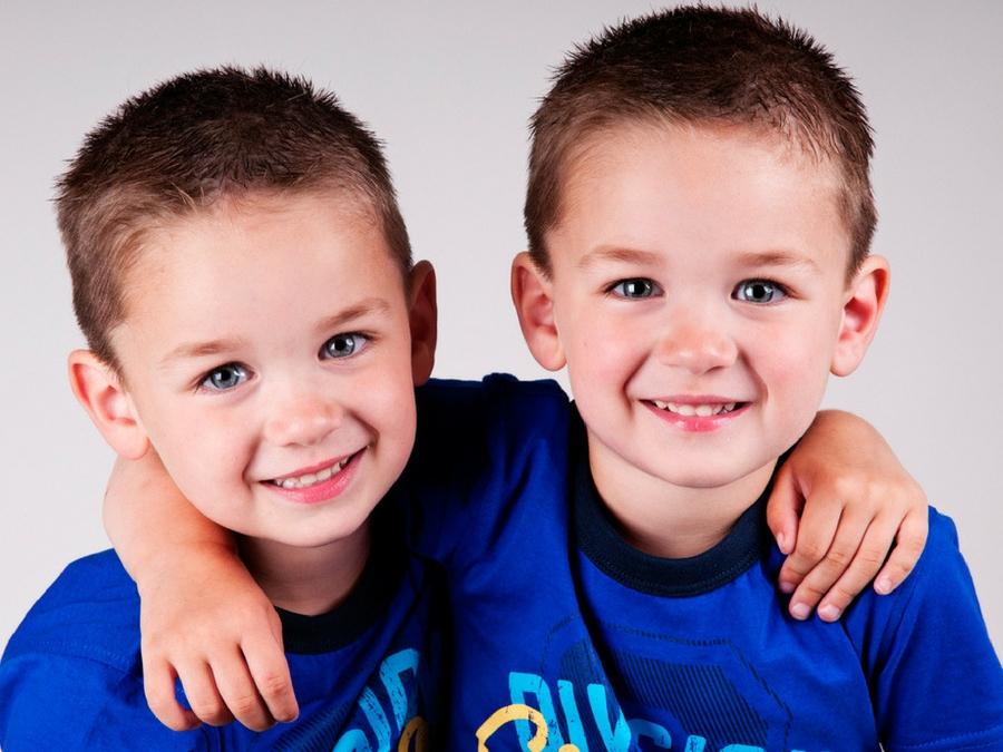 gemelli omozigoti maschio e femmina